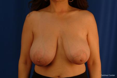 Breast Reduction Streeterville, Chicago 2289 - Before Image