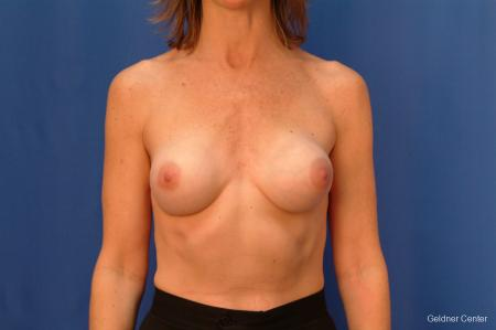 Chicago Breast Augmentation 2444 - Before Image 1