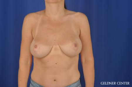 Chicago Breast Lift 6656 -  After Image 1