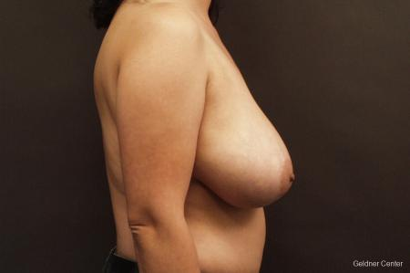 Chicago Breast Reduction 2416 - Before Image 2