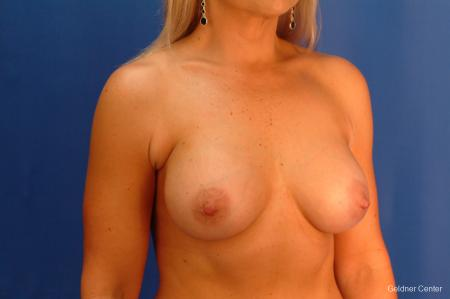 Breast Augmentation Hinsdale, Chicago 2632 -  After 3