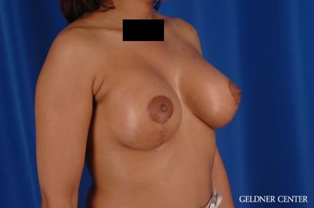 Breast Lift: Patient 54 - After Image 2