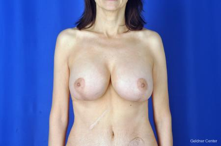 Breast Augmentation: Patient 5 - After Image 1