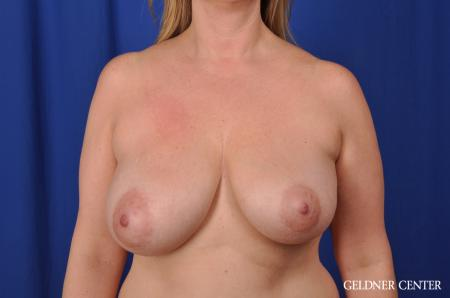 Breast Lift Streeterville, Chicago 8754 - Before 1