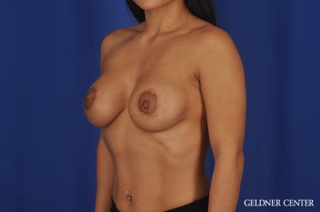 Breast Augmentation: Patient 185 - After Image 4