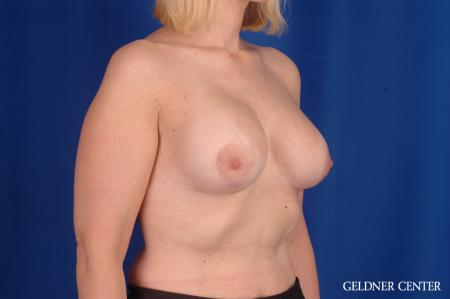 Breast Lift: Patient 50 - After Image 2