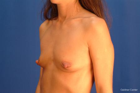 Chicago Breast Augmentation 2521 - Before and After Image 4