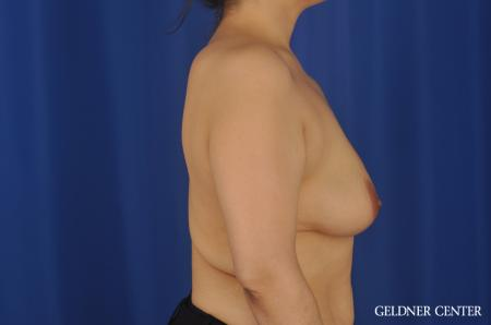 Chicago Breast Lift 8812 - Before Image 2
