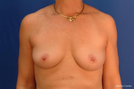 Breast Augmentation Hinsdale, Chicago 2541 - Before Image 1