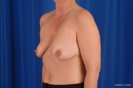 Breast Lift Lake Shore Dr, Chicago 2308 - Before and After Image 4