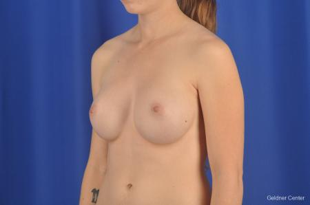 Chicago Breast Augmentation 2304 -  After Image 4