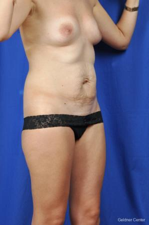 Tummy Tuck: Patient 5 - Before Image 2