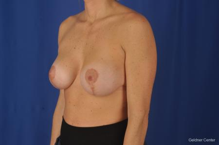 Breast Lift: Patient 20 - After Image 4