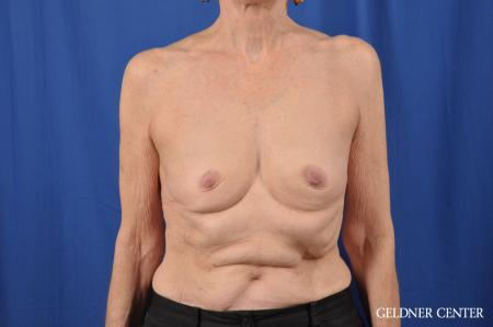 Breast Augmentation: Patient 138 - Before Image 1