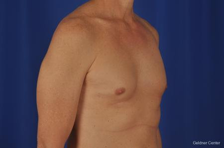 Gynecomastia: Patient 2 - Before Image 2