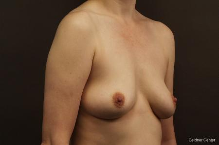 Chicago Breast Augmentation 2413 - Before Image 3