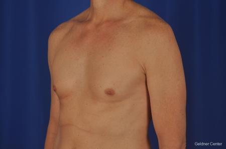 Gynecomastia: Patient 2 - Before Image 4