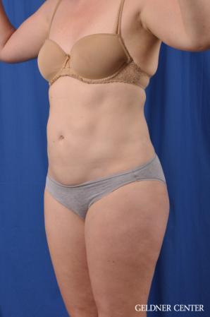 Liposuction: Patient 48 - After Image 5