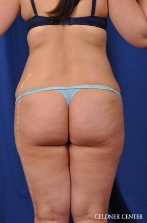 Liposuction: Patient 22 - Before and After Image 5