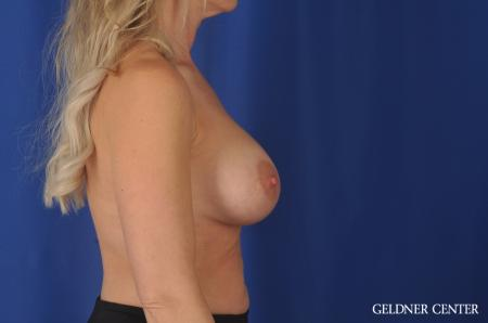 Complex Breast Augmentation Streeterville, Chicago 11971 -  After Image 2