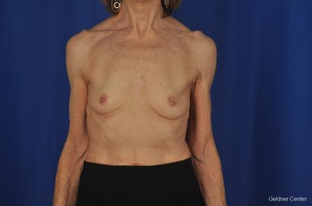 Breast Augmentation Hinsdale, Chicago 2055 - Before Image 1