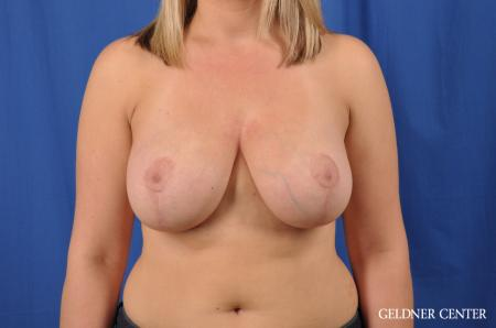 Breast Lift: Patient 40 - After Image 1