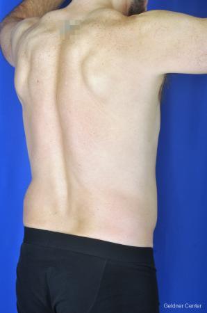 Liposuction For Men: Patient 7 - Before Image 4