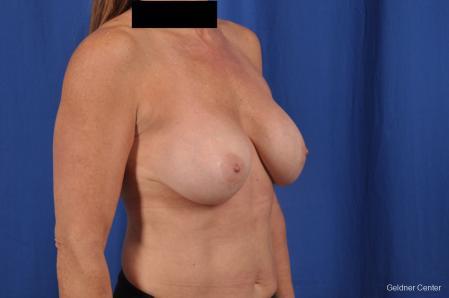 Complex Breast Augmentation: Patient 35 - Before Image 3