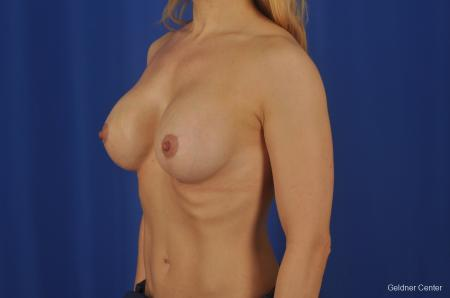 Chicago Complex Breast Augmentation 2073 -  After Image 4