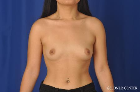 Breast Augmentation: Patient 146 - Before Image 1