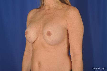 Breast Augmentation: Patient 158 - After Image 4