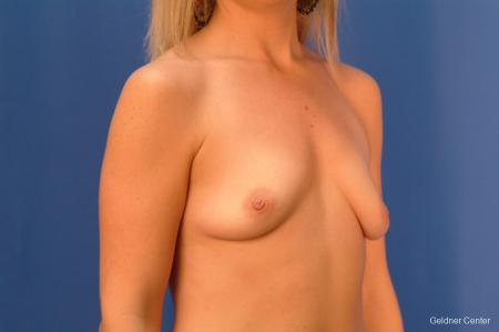 Breast Augmentation Lake Shore Dr, Chicago 2350 - Before Image 3