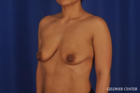Breast Augmentation: Patient 185 - Before and After Image 4