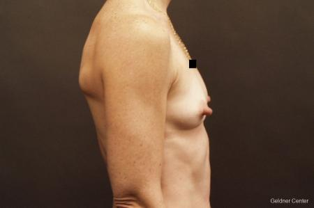 Chicago Breast Augmentation 2635 - Before Image 2