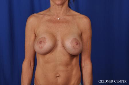 Chicago Complex Breast Augmentation 5471 -  After Image 1