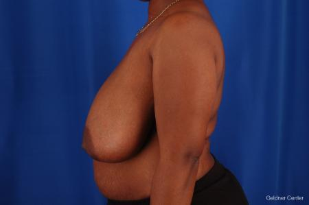 Breast Reduction Hinsdale, Chicago 2334 - Before Image 4