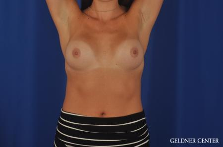 Breast Augmentation Hinsdale, 4290 - Before and After Image 5