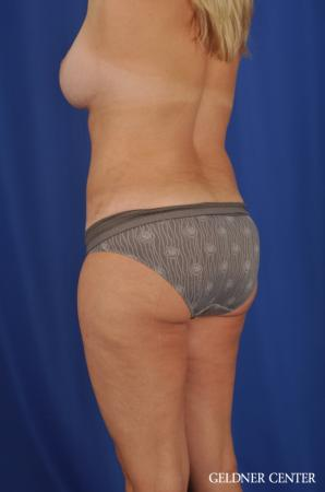 Lipoabdominoplasty: Patient 6 - After Image 5