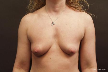Breast Augmentation Lake Shore Dr, Chicago 2436 - Before Image 1