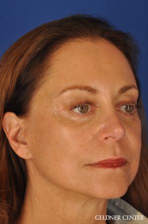 Facelift & Neck Lift: Patient 1 - After Image 3