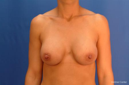 Chicago Breast Augmentation 2521 -  After Image 1