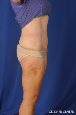 Liposuction: Patient 34 - After Image 3