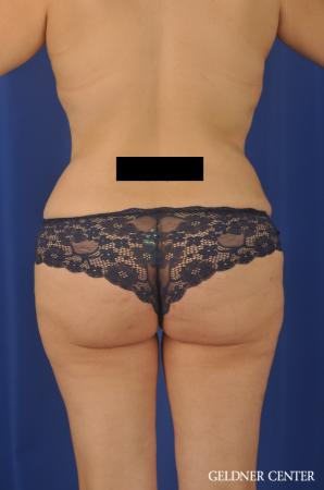 Tummy Tuck: Patient 24 - After 4