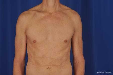 Gynecomastia: Patient 2 - After Image 1