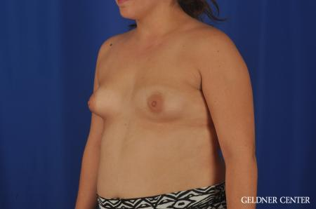 Breast Augmentation Hinsdale, Chicago 5466 - Before and After Image 4
