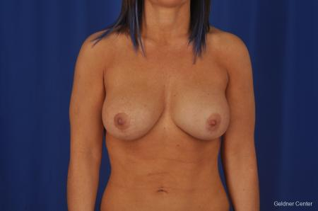 Breast Augmentation Hinsdale, Chicago 2335 -  After Image 1