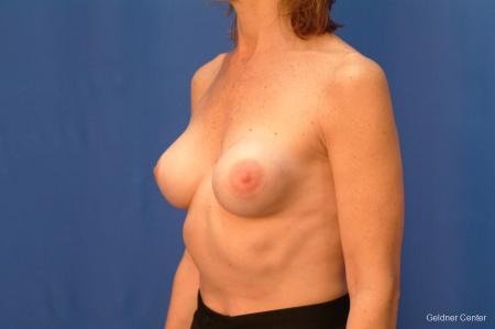 Chicago Breast Augmentation 2444 - Before and After Image 4