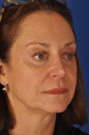 Facelift: Patient 7 - Before Image 3