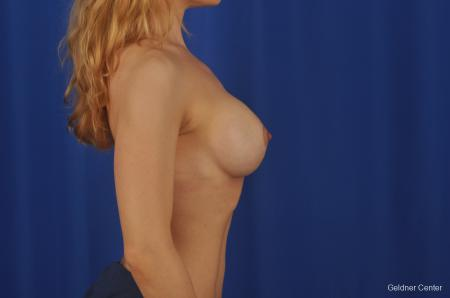 Chicago Complex Breast Augmentation 2073 -  After Image 2