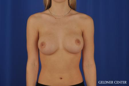 Breast Augmentation Streeterville, Chicago 4294 -  After Image 1